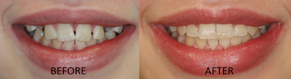 One of Dr. Soberay's Orthodontic Care Patients