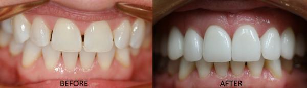 Minneapolis Cosmetic Dentist Dr. Ann Soberay Porcelain Veneers