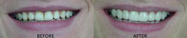 Twin Cities Cosmetic Dentist Dr. Ann Soberay Porcelain Veneers