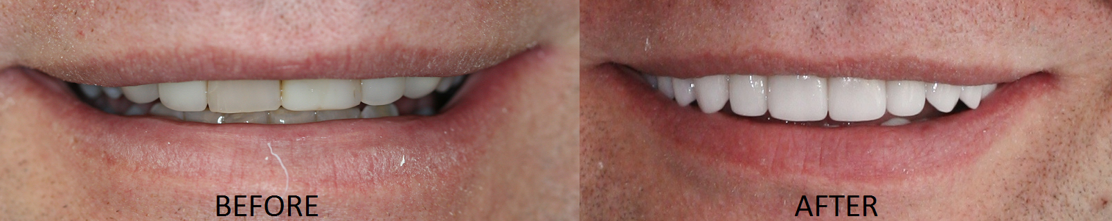 Dr. Soberay's LVI Neuromuscular Full Mouth Restoration Patient Before and After Photos