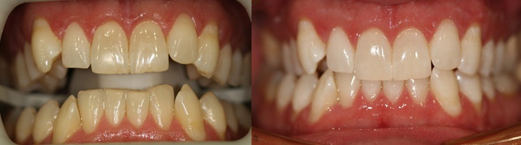 Simple Zoom Whitening! Quick, Easy, Painless, and Affordable.