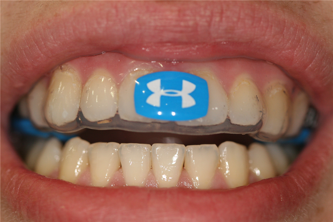 Fitted to one of Dr. Soberay's actual patients, this UnderArmour Performance Guard by BiteTech is a great way to protect against injury and increase athletic performance.