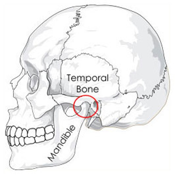 What is TMJ? Everyone has a Temporal Mandibular Joint. Some have pain in the TMJ and this is known as TMD, or Temporal Mandibular Joint Dysfunction or Disorder.