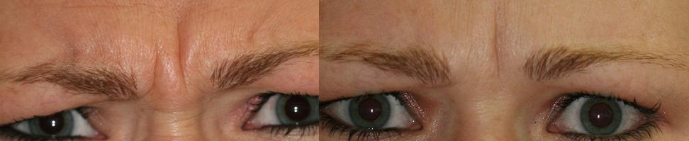 Deep wrinkles reduced and even eliminated with the use of Botox Cosmetic Therapy.