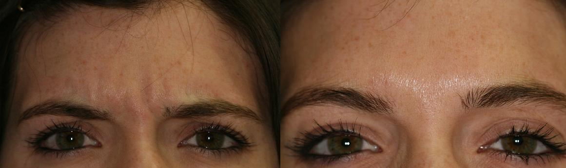 Mary's wrinkles were eliminated with the use of Botox Cosmetic Therapy in the Glabellar Muscle