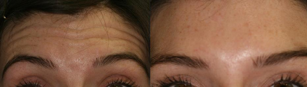 Botox Cosmetic Therapy in the frontalis muscles eliminated Mary's forehead wrinkles.