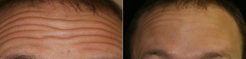 Botox Cosmetic Therapy to the frontalis muscle reduces Fritz's forehead wrinkles.