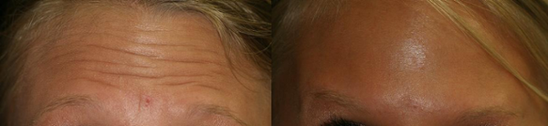 Botox Cosmetic Therapy in the frontalis musclue eliminated Hallie's forehead wrinkles.