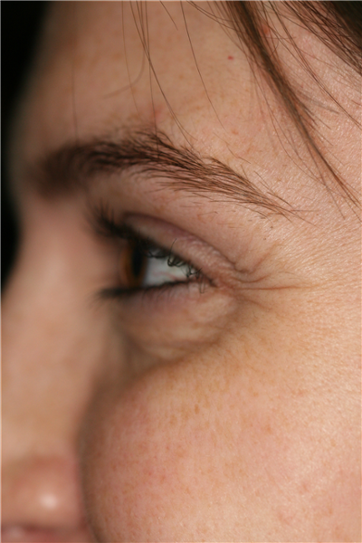 Mary's eyes before Botox Cosmetic Therapy to treat lines radiating out from the eyes (commonly referred to as crow's feet). Photo taken at full smile.