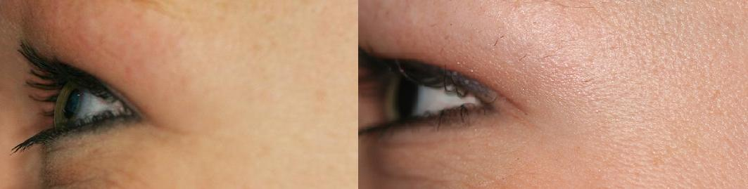 Botox Cosmetic reduces and eliminates Megan's crow's feet.