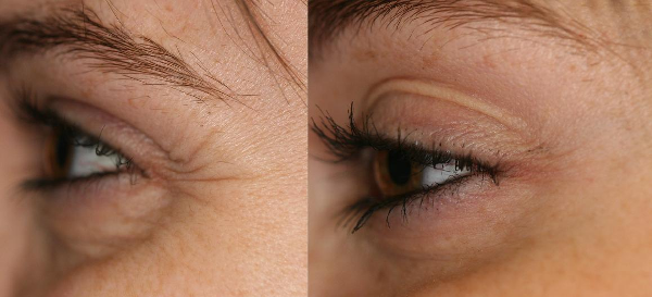 Here you can see that side-by-side dramatic reduction of radiating lines from Mary's eyes after botox cosmetic therapy.