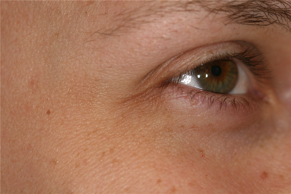 Fritz's eyes after botox cosmetic therapy. Notice the radiating lines (crows feet) have disappeared. Both of these photos are taken at full smile.