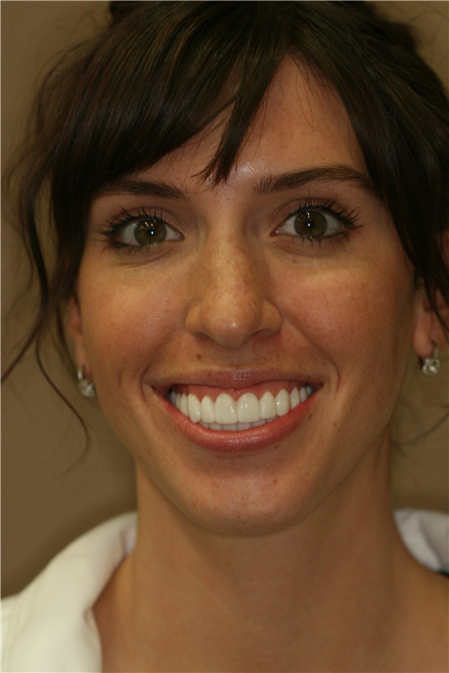 Mary's lowered lip line after botox cosmetic