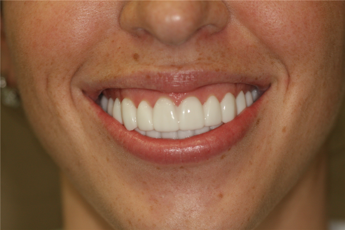 Mary's high lip line is reduced with botox cosmetic.