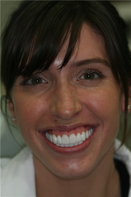 Example of a high lip line (Gummy Smile)