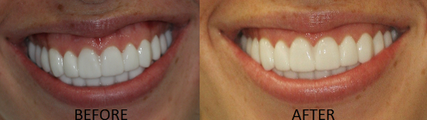 Here you can see the dramatic improvement from a small lowering of the lip line using non-surgical Botox Cosmetic Therapy.