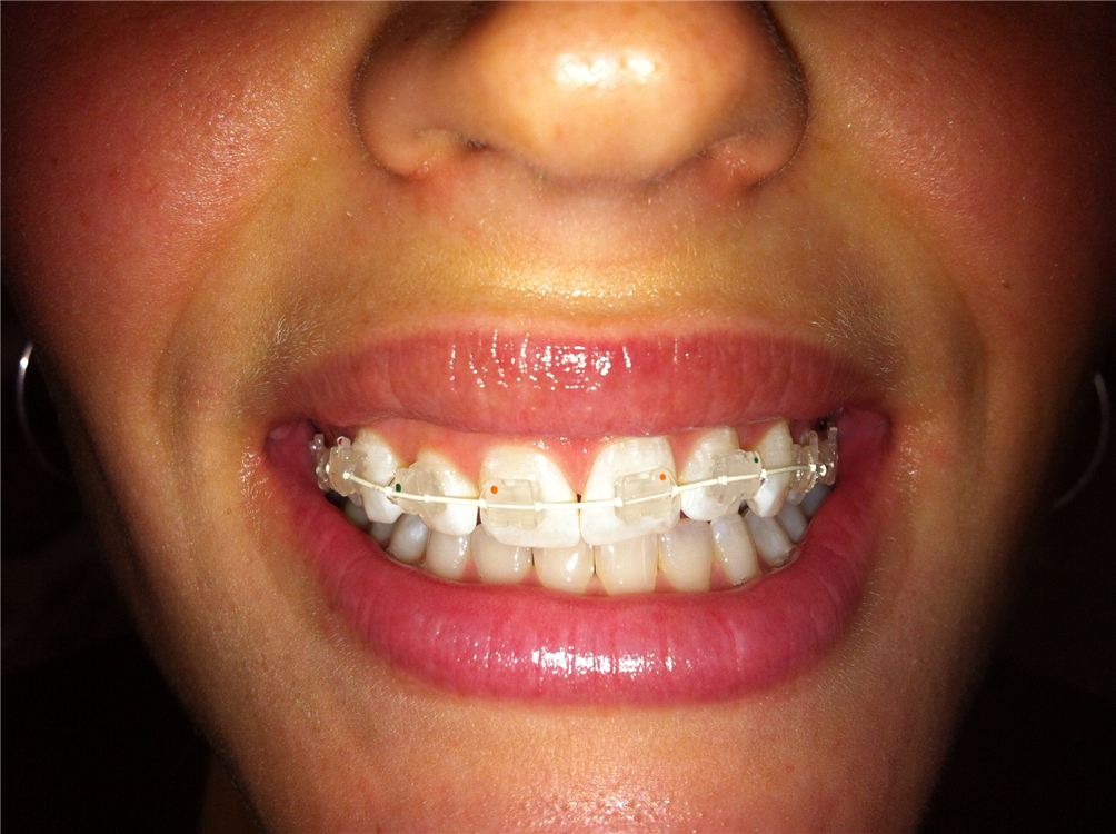 Esthetic ceramic braces are less visible than traditional metal braces.