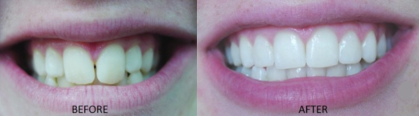 Dr. Soberay's actual patient before and after orthodontic care at Omega Dental Care.