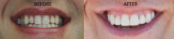 Minneapolis Cosmetic Dentist Dr. Ann Soberay transforms this patient's smile with porcelain veneers.