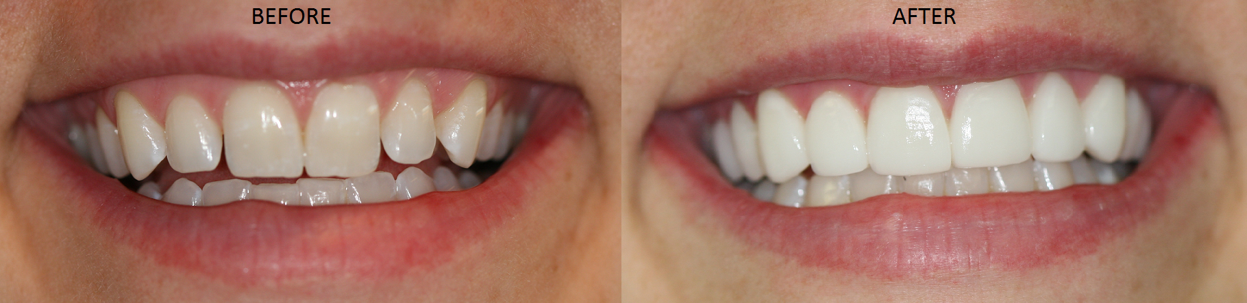 Dr. Ann Soberay's patient receives no prep porcelain veneers. Porcelain Veneers and Crowns are a great way to transform a smile.