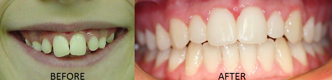 Dr. Soberay's actual patient after orthodontic care at Omega Dental Care.