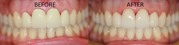 Four anterior connected crowns were replaced with individual porcelain restorations and Zoom whitening was performed on the rest of the teeth, transforming the smile!