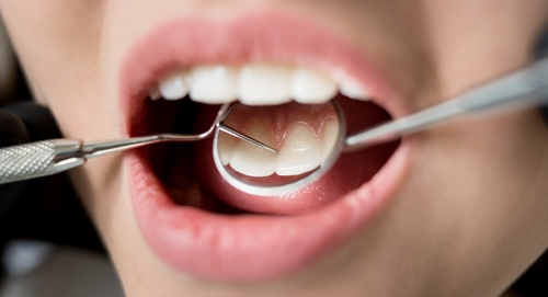Cosmetic-Dentistry_500px.jpg