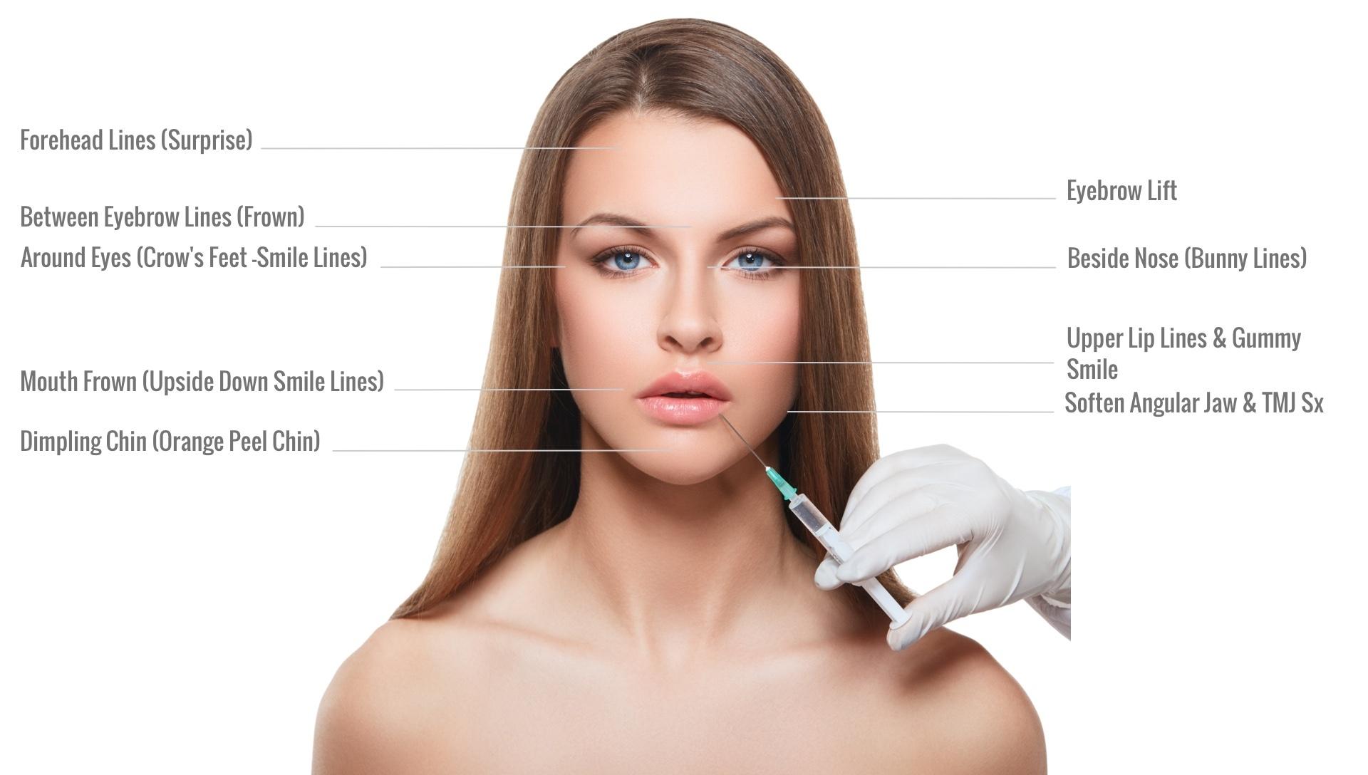 GetNaturopathic-Botox-Treatment-Areas.jpg