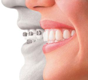 Orthodontic Services.jpg