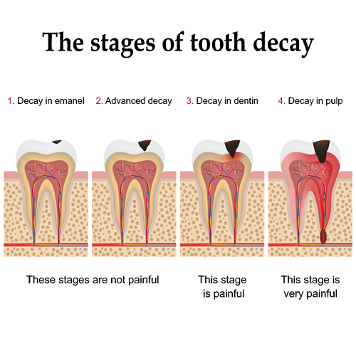 gainesville_dental_arts_stages_of_caries